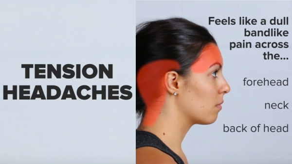 watch  different types of headaches and how to cure them