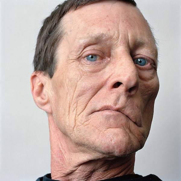 Poignant Portraits Of Facial Paralysis Patients ...