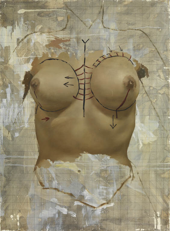 Paintings Of Plastic Surgery