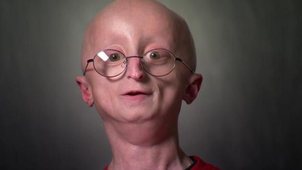 The Heartwarming Story Of Sam A Strong Willed Boy With A Rare Aging Disease Designtaxi Com