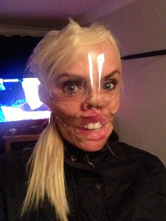 The Latest Internet Trend In The Uk Scotch Tape Selfies -4727